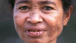 Timor Leste (1997)